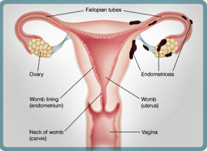 What Is Endometriosis? - B.A.S.E. Foundation (Jamaica)