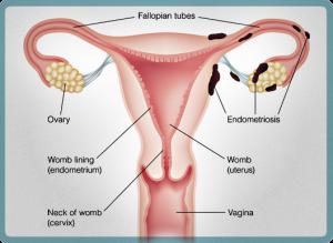Endometriosis Diagram